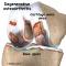 Glucosamina e condroitinsolfato:  due sostanze contro i vostri eterni dolori articolari