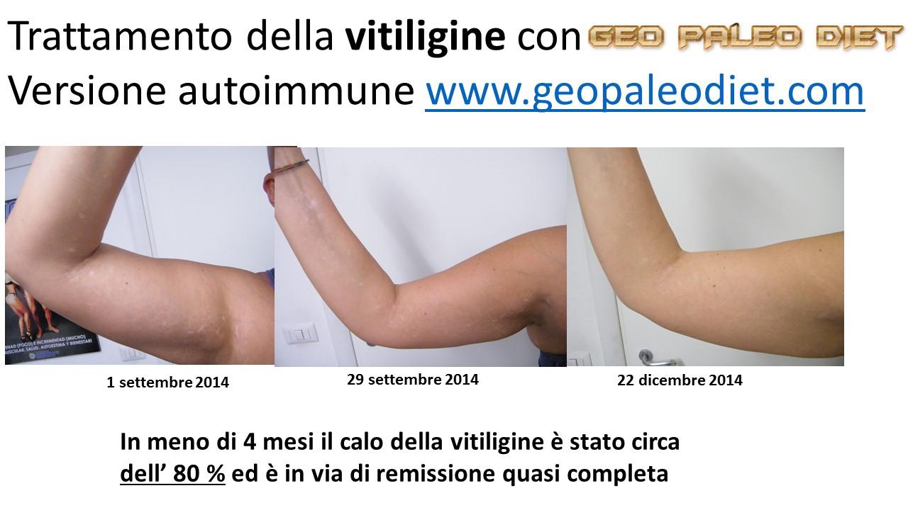 confronto_vitiligine
